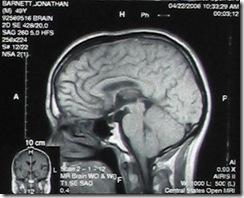 brain on drugs