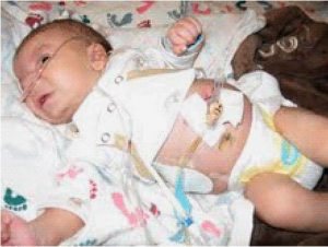Picture of baby Rico Martinez Nagel, with stomach tube delivering AZT and other drugs.